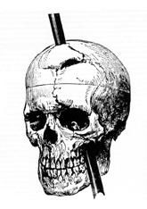 drawing of phineas gage's skull
